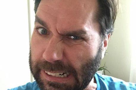 Torkel's beard